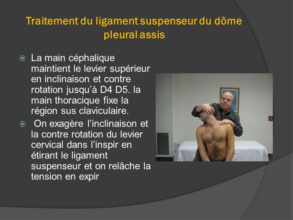 Traitement du ligament suspenseur du dôme pleural assis La main céphalique maintient le levier supérieur en inclinaison et contre rotation jusquà D4 D