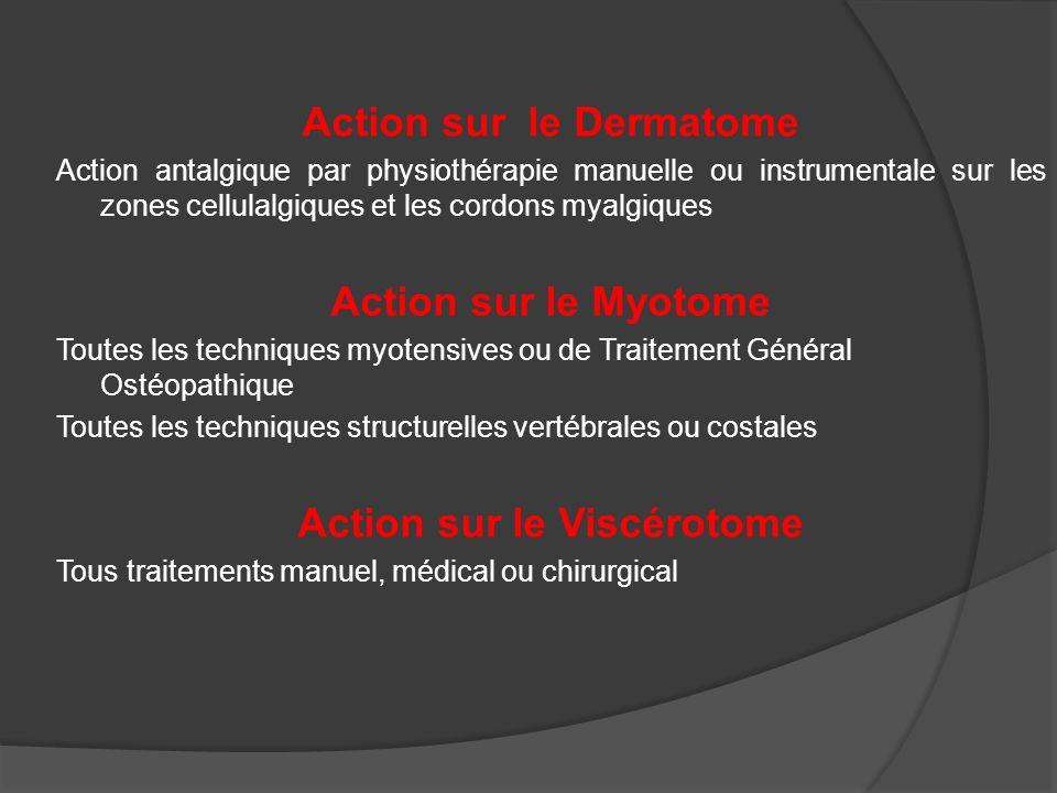 Action sur le Dermatome Action antalgique par physiothérapie manuelle ou instrumentale sur les zones cellulalgiques et les cordons myalgiques Action s