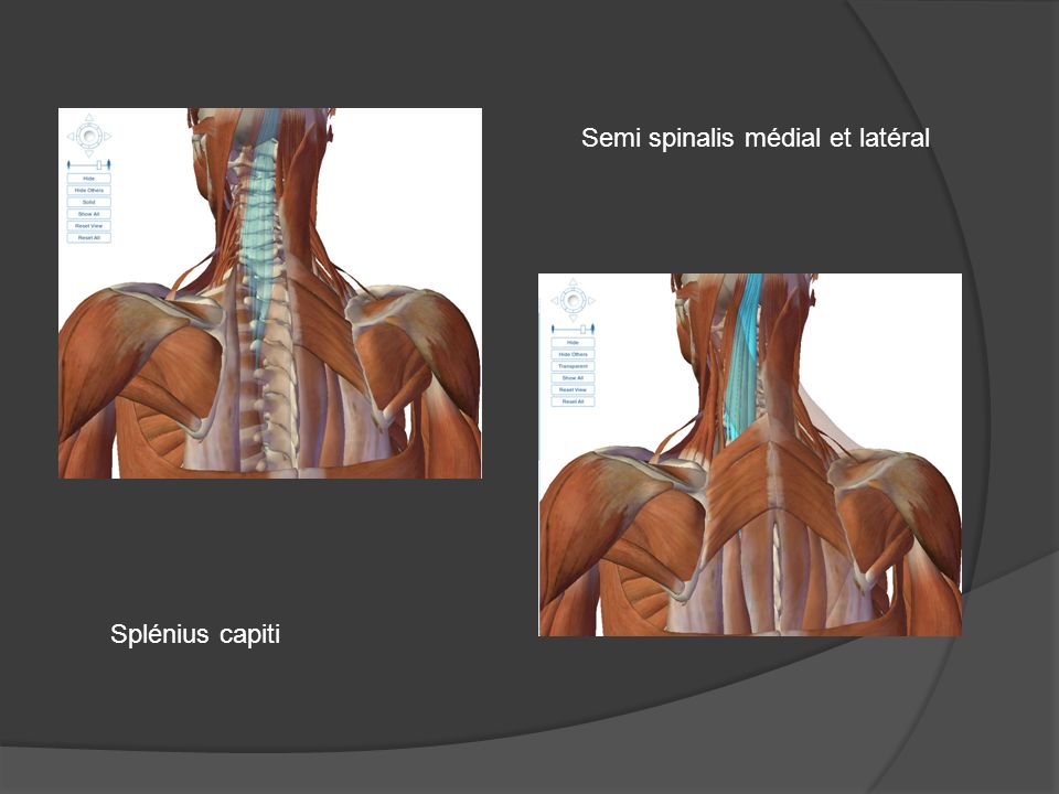 Splénius capiti Semi spinalis médial et latéral