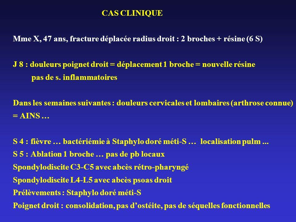 CAS CLINIQUE Mme X, 47 ans, fracture déplacée radius droit : 2 broches + résine (6 S) J 8 : douleurs poignet droit = déplacement 1 broche = nouvelle r