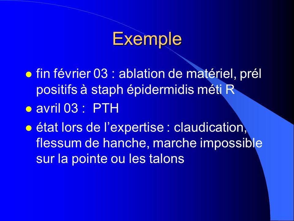 Exemple l fin février 03 : ablation de matériel, prél positifs à staph épidermidis méti R l avril 03 : PTH l état lors de lexpertise : claudication, f