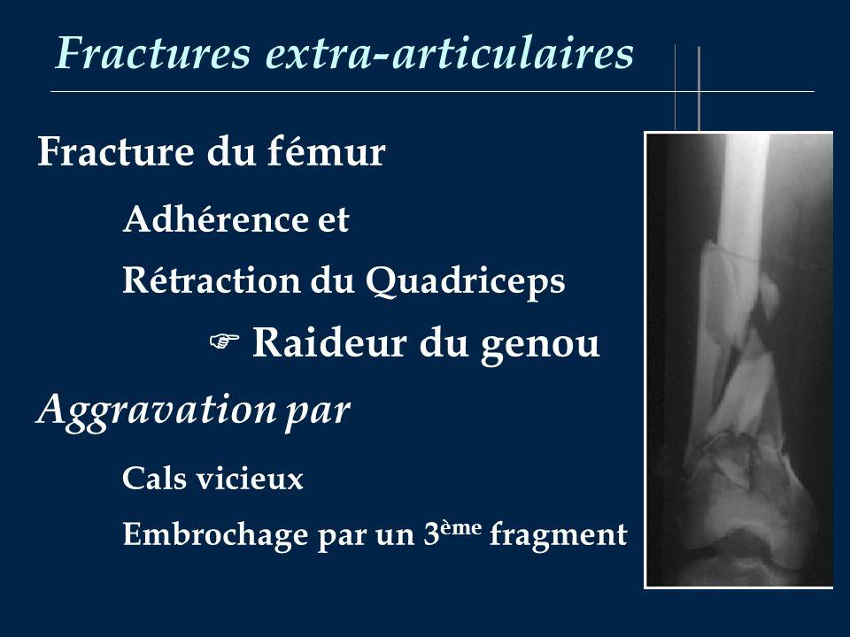 Fractures extra-articulaires Fracture du fémur Adhérence et Rétraction du Quadriceps Raideur du genou Aggravation par Cals vicieux Embrochage par un 3