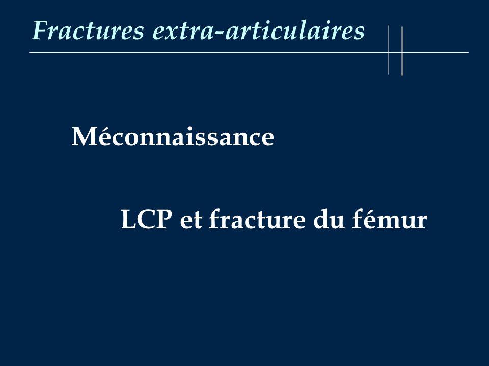 Fractures extra-articulaires Méconnaissance LCP et fracture du fémur