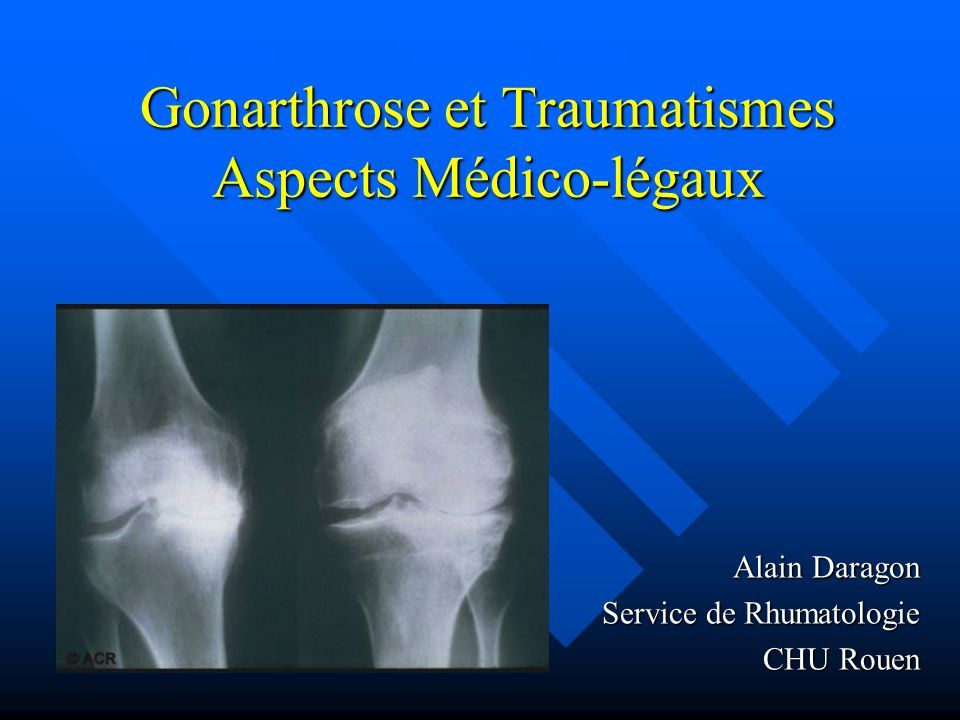 Gonarthrose et Traumatismes Aspects Médico-légaux Alain Daragon Service de Rhumatologie CHU Rouen