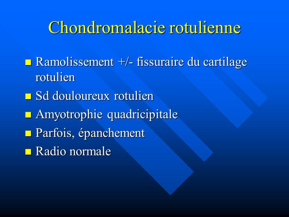 Chondromalacie rotulienne Ramolissement +/- fissuraire du cartilage rotulien Ramolissement +/- fissuraire du cartilage rotulien Sd douloureux rotulien