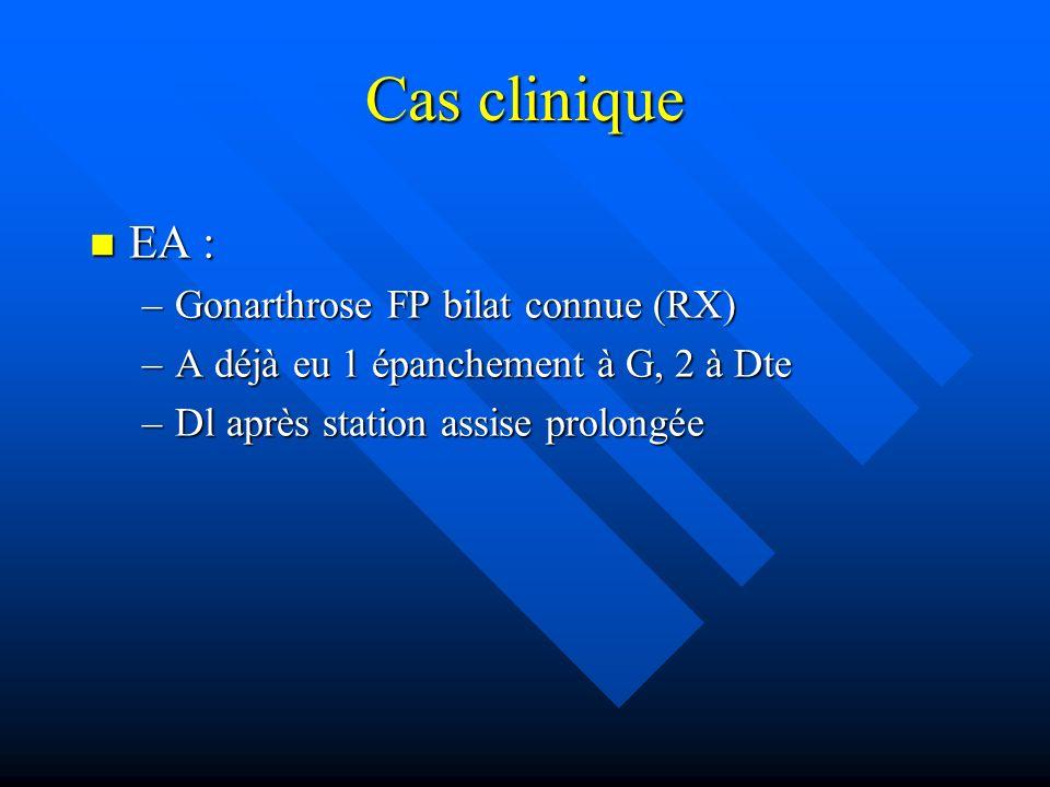 Cas clinique EA : EA : –Gonarthrose FP bilat connue (RX) –A déjà eu 1 épanchement à G, 2 à Dte –Dl après station assise prolongée