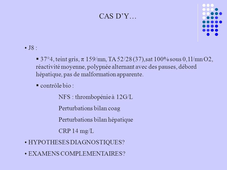 CAS DY… J8 : 37°4, teint gris, π 159/mn, TA 52/28 (37),sat 100% sous 0,1l/mn O2, réactivité moyenne, polypnée alternant avec des pauses, débord hépati