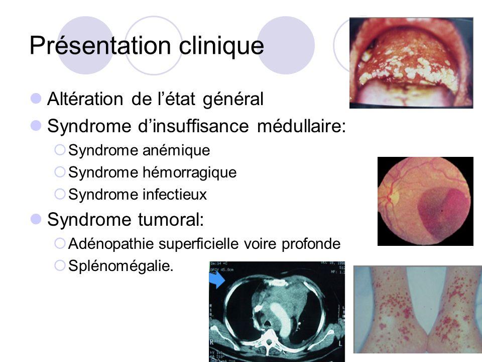 Présentation clinique Altération de létat général Syndrome dinsuffisance médullaire: Syndrome anémique Syndrome hémorragique Syndrome infectieux Syndr