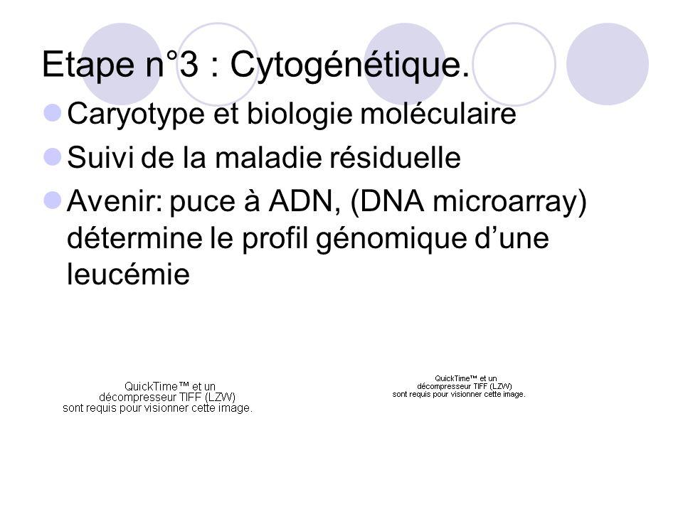 Etape n°3 : Cytogénétique. Caryotype et biologie moléculaire Suivi de la maladie résiduelle Avenir: puce à ADN, (DNA microarray) détermine le profil g