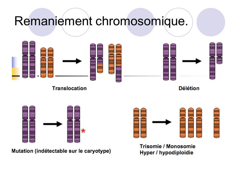 Facteurs de mauvais pronostic cytogénétiques.