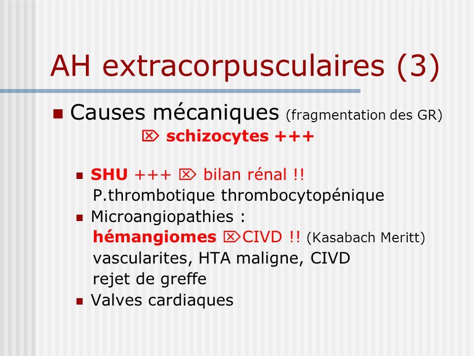 AH extracorpusculaires (3) Causes mécaniques (fragmentation des GR) schizocytes +++ SHU +++ bilan rénal !! P.thrombotique thrombocytopénique Microangi