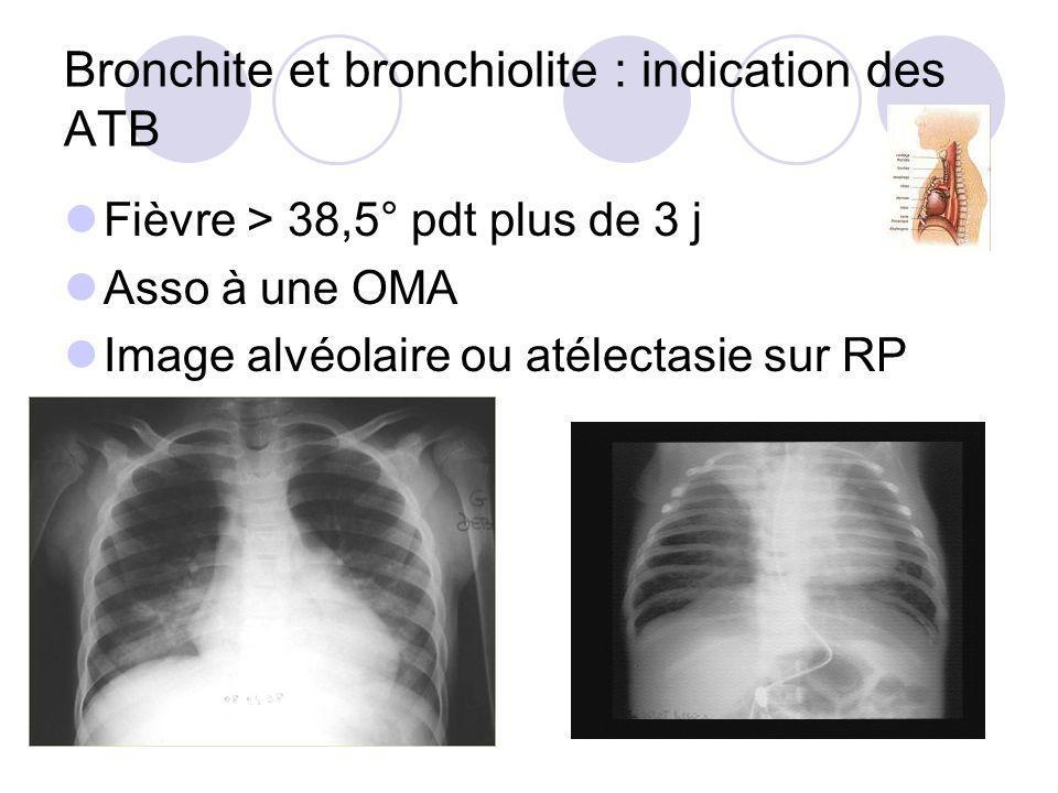 Bronchite et bronchiolite : indication des ATB Fièvre > 38,5° pdt plus de 3 j Asso à une OMA Image alvéolaire ou atélectasie sur RP