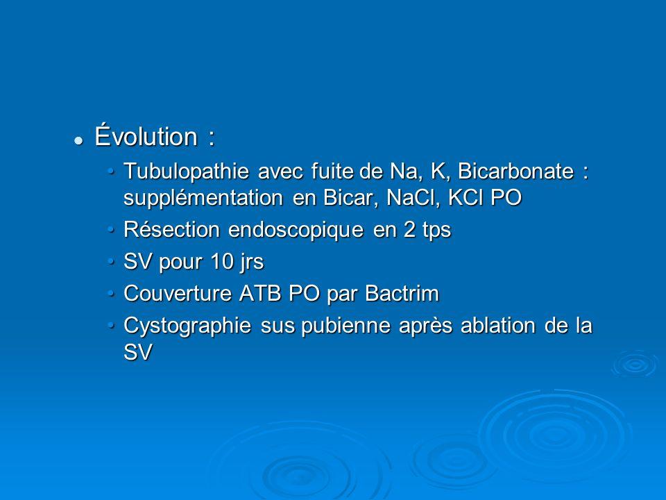 Évolution : Évolution : Tubulopathie avec fuite de Na, K, Bicarbonate : supplémentation en Bicar, NaCl, KCl POTubulopathie avec fuite de Na, K, Bicarb