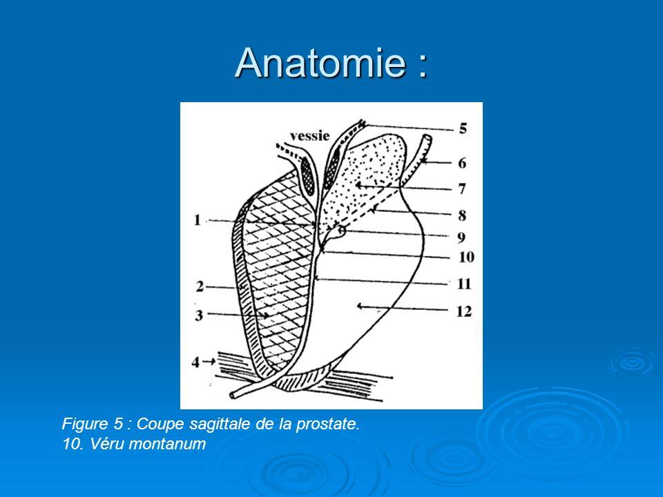 Anatomie : Figure 5 : Coupe sagittale de la prostate. 10. Véru montanum
