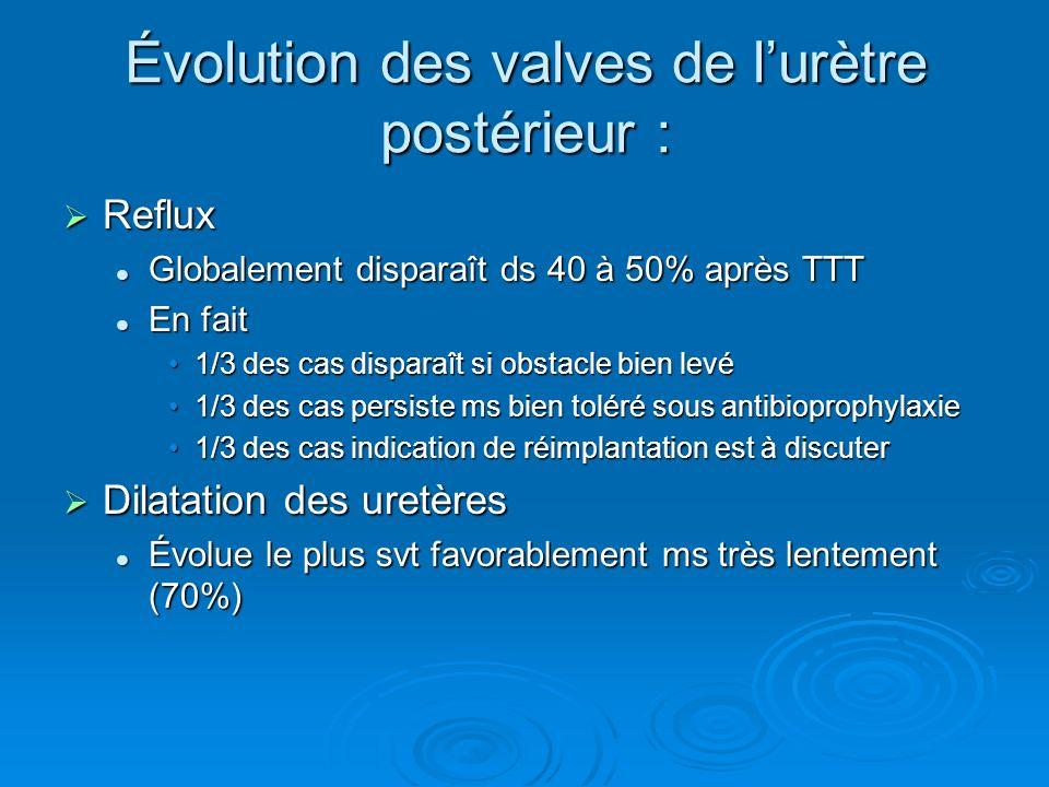 Évolution des valves de lurètre postérieur : Reflux Reflux Globalement disparaît ds 40 à 50% après TTT Globalement disparaît ds 40 à 50% après TTT En