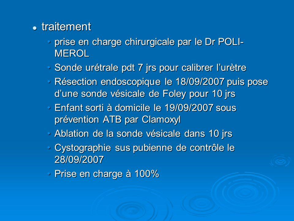 traitement traitement prise en charge chirurgicale par le Dr POLI- MEROLprise en charge chirurgicale par le Dr POLI- MEROL Sonde urétrale pdt 7 jrs po