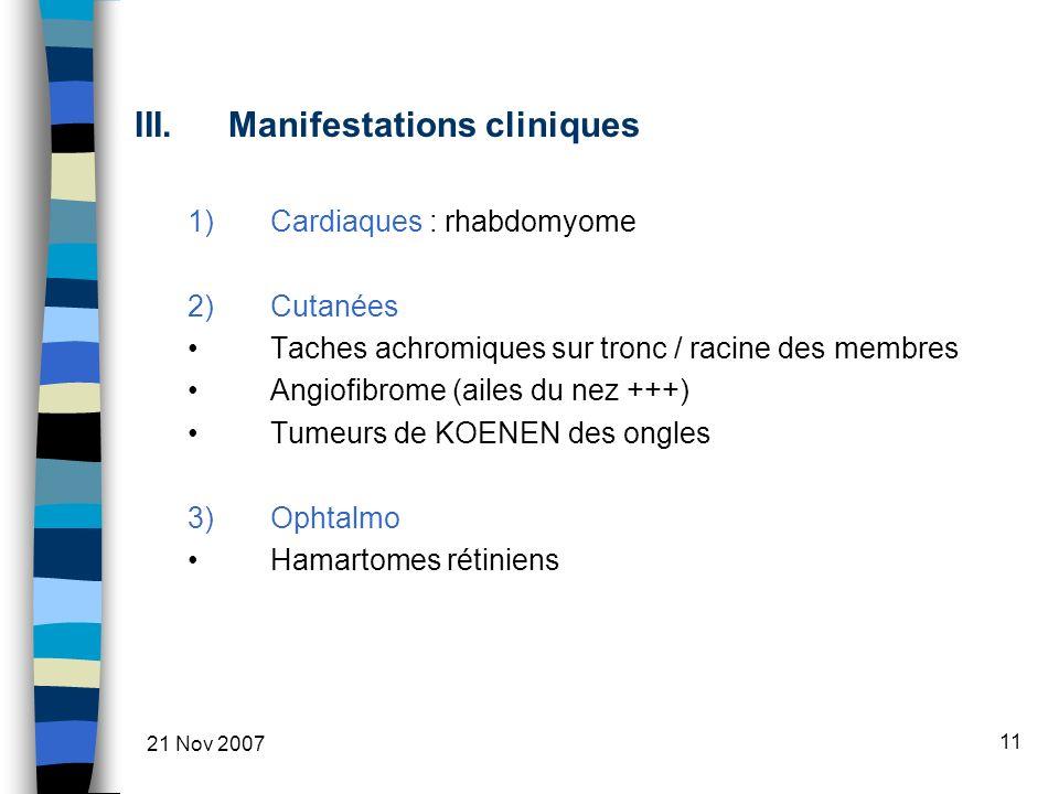 21 Nov 2007 11 III.Manifestations cliniques 1)Cardiaques : rhabdomyome 2)Cutanées Taches achromiques sur tronc / racine des membres Angiofibrome (ailes du nez +++) Tumeurs de KOENEN des ongles 3)Ophtalmo Hamartomes rétiniens