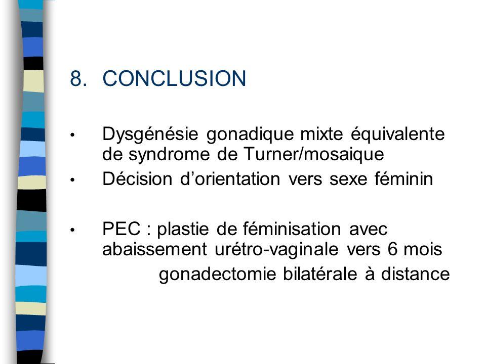 8.CONCLUSION Dysgénésie gonadique mixte équivalente de syndrome de Turner/mosaique Décision dorientation vers sexe féminin PEC : plastie de féminisati