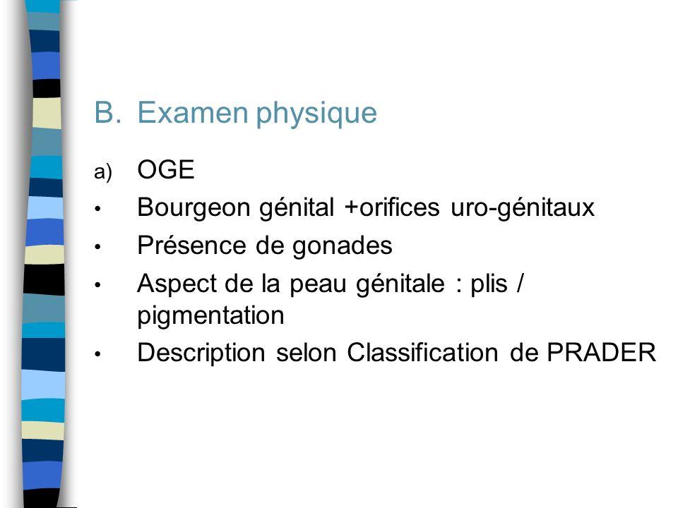 B.Examen physique a) OGE Bourgeon génital +orifices uro-génitaux Présence de gonades Aspect de la peau génitale : plis / pigmentation Description selo