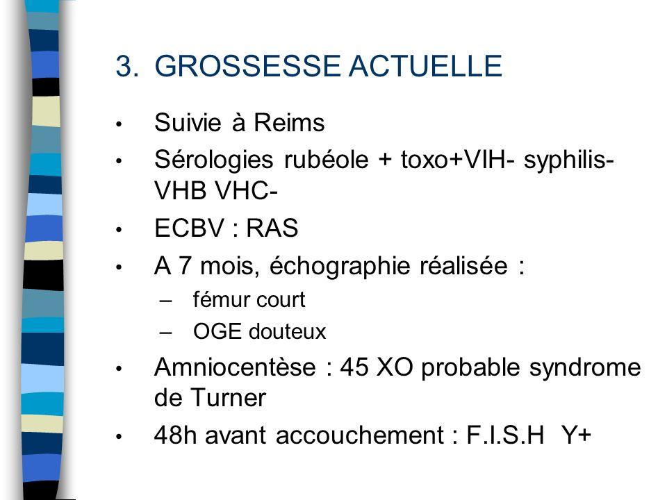 3.GROSSESSE ACTUELLE Suivie à Reims Sérologies rubéole + toxo+VIH- syphilis- VHB VHC- ECBV : RAS A 7 mois, échographie réalisée : –fémur court –OGE do