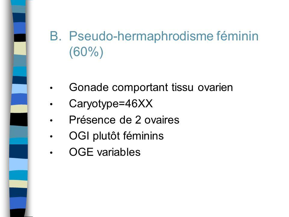 B.Pseudo-hermaphrodisme féminin (60%) Gonade comportant tissu ovarien Caryotype=46XX Présence de 2 ovaires OGI plutôt féminins OGE variables