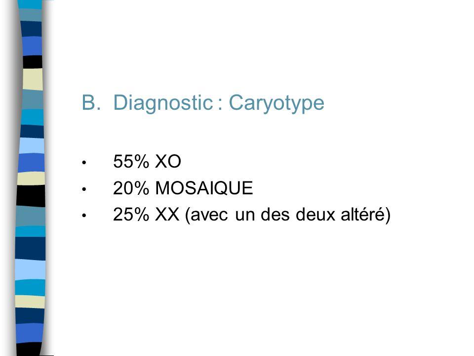 B.Diagnostic : Caryotype 55% XO 20% MOSAIQUE 25% XX (avec un des deux altéré)