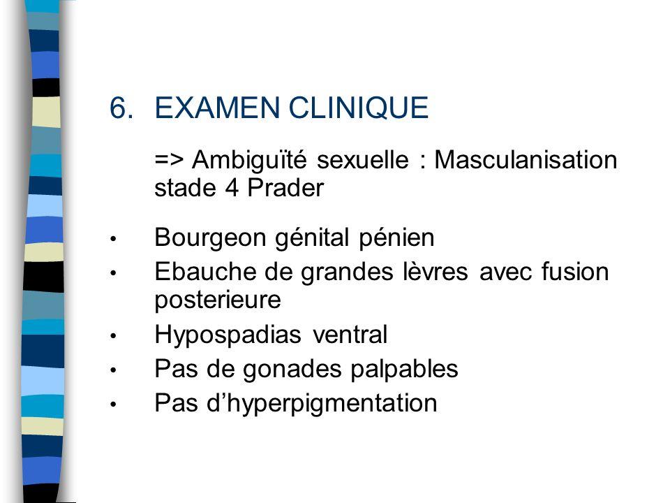 6.EXAMEN CLINIQUE => Ambiguïté sexuelle : Masculanisation stade 4 Prader Bourgeon génital pénien Ebauche de grandes lèvres avec fusion posterieure Hyp