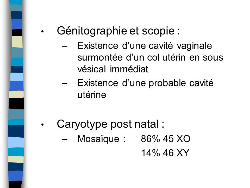 Génitographie et scopie : –Existence dune cavité vaginale surmontée dun col utérin en sous vésical immédiat –Existence dune probable cavité utérine Ca