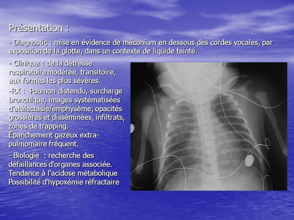 Présentation : - Diagnostic : mise en évidence de méconium en dessous des cordes vocales, par exposition de la glotte, dans un contexte de liquide tei