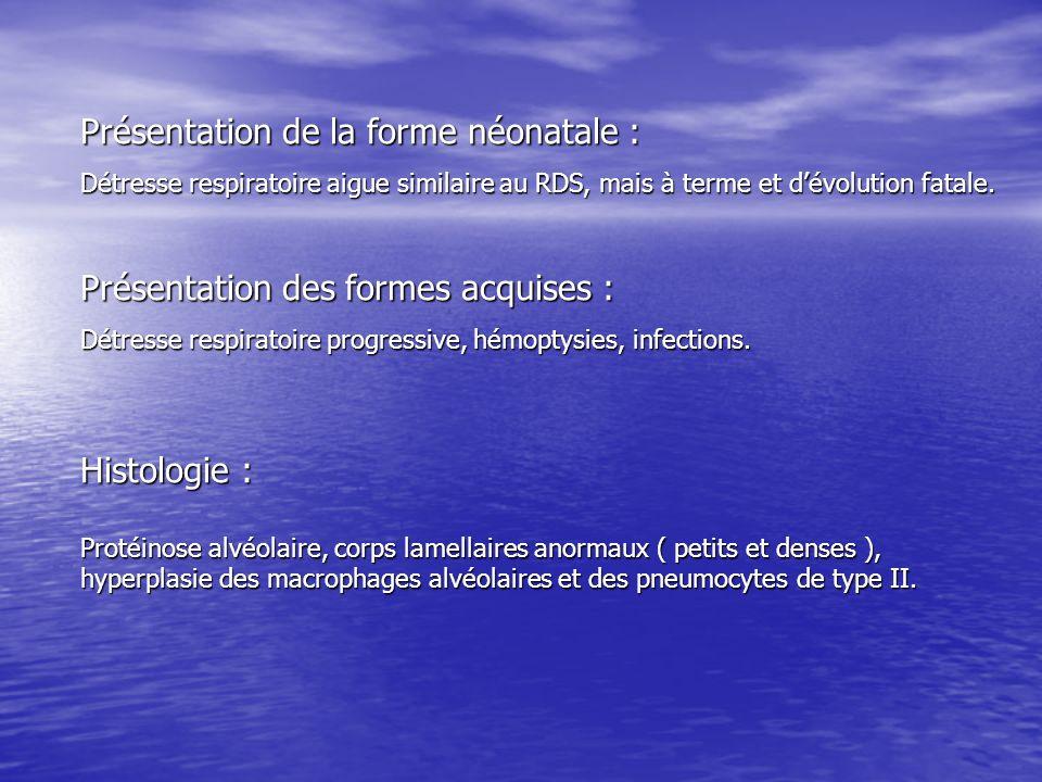 Présentation de la forme néonatale : Détresse respiratoire aigue similaire au RDS, mais à terme et dévolution fatale. Présentation des formes acquises