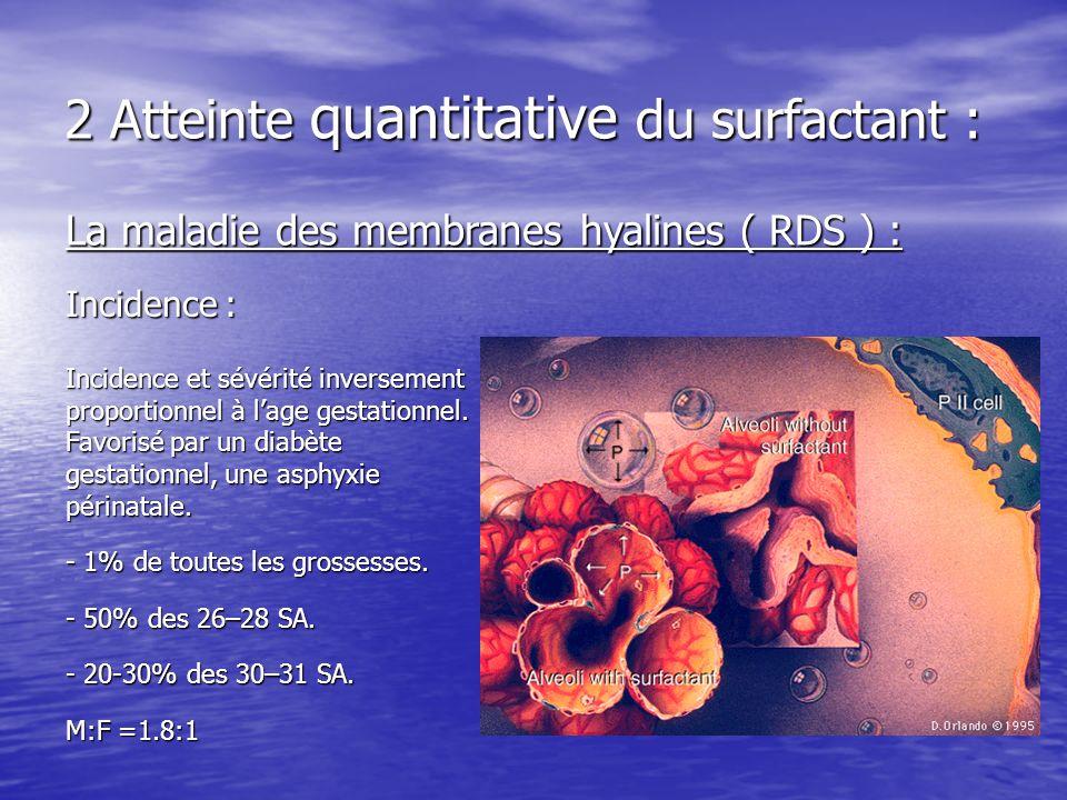 2 Atteinte quantitative du surfactant : La maladie des membranes hyalines ( RDS ) : Incidence : Incidence et sévérité inversement proportionnel à lage