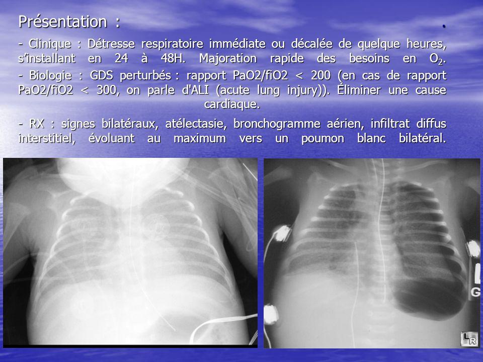 Présentation :. - Clinique : Détresse respiratoire immédiate ou décalée de quelque heures, sinstallant en 24 à 48H. Majoration rapide des besoins en O