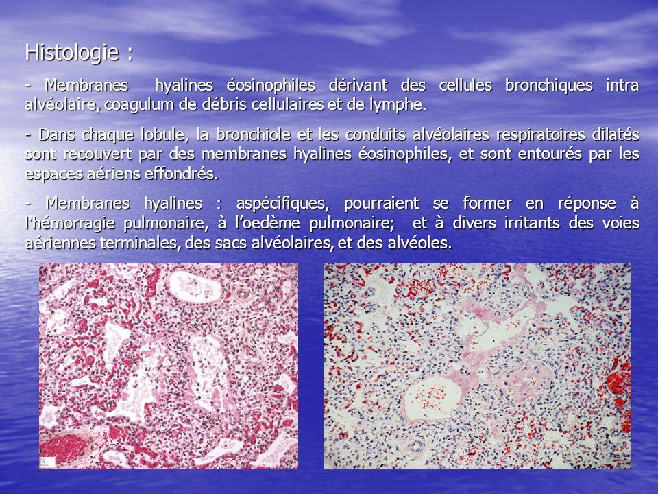 Histologie : - Membranes hyalines éosinophiles dérivant des cellules bronchiques intra alvéolaire, coagulum de débris cellulaires et de lymphe. - Dans