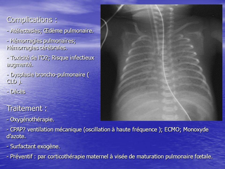 Complications : - Atélectasies; Œdème pulmonaire. - Hémorragies pulmonaires; Hémorragies cérébrales. - Toxicité de lO2; Risque infectieux augmenté. -
