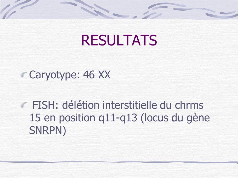 RESULTATS Caryotype: 46 XX FISH: délétion interstitielle du chrms 15 en position q11-q13 (locus du gène SNRPN)