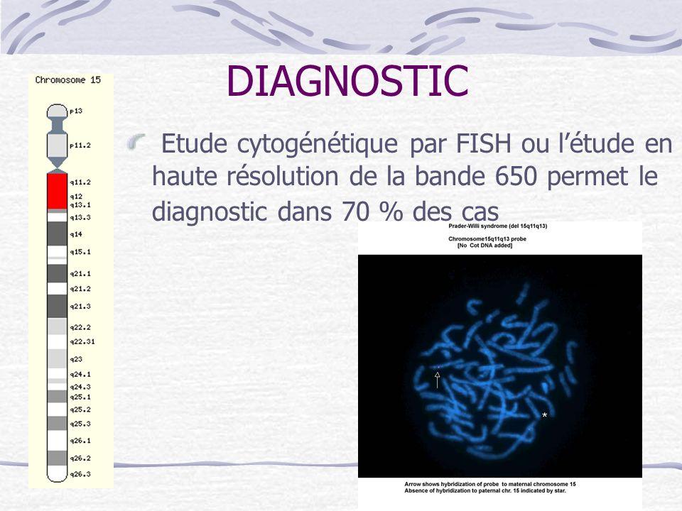 DIAGNOSTIC Etude cytogénétique par FISH ou létude en haute résolution de la bande 650 permet le diagnostic dans 70 % des cas