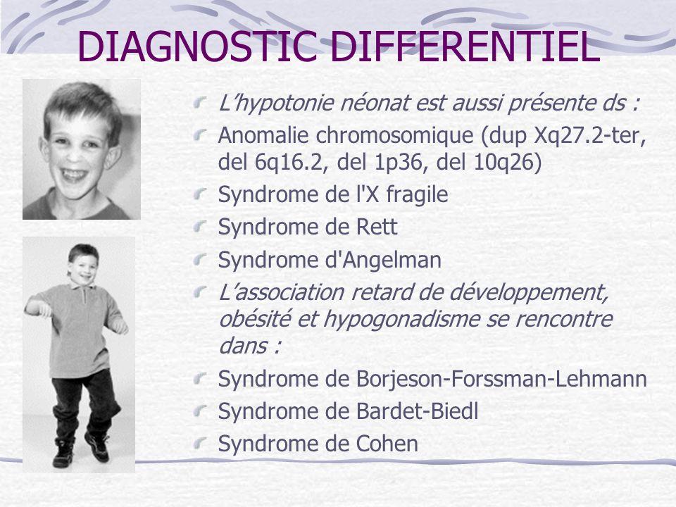 DIAGNOSTIC DIFFERENTIEL Lhypotonie néonat est aussi présente ds : Anomalie chromosomique (dup Xq27.2-ter, del 6q16.2, del 1p36, del 10q26) Syndrome de