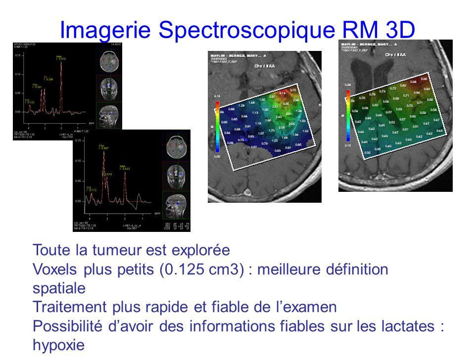 Toute la tumeur est explorée Voxels plus petits (0.125 cm3) : meilleure définition spatiale Traitement plus rapide et fiable de lexamen Possibilité davoir des informations fiables sur les lactates : hypoxie Imagerie Spectroscopique RM 3D