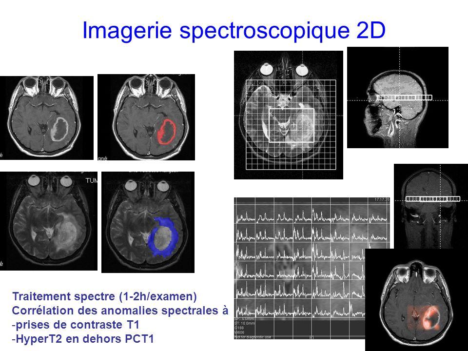 Imagerie spectroscopique 2D Traitement spectre (1-2h/examen) Corrélation des anomalies spectrales à -prises de contraste T1 -HyperT2 en dehors PCT1
