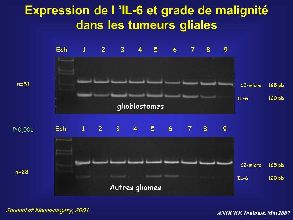 ANOCEF, Toulouse, Mai 2007 Expression de l IL-6 et grade de malignité dans les tumeurs gliales 2-micro IL-6 165 pb 120 pb Ech 1 2 3 4 5 6 7 8 9 2-micr