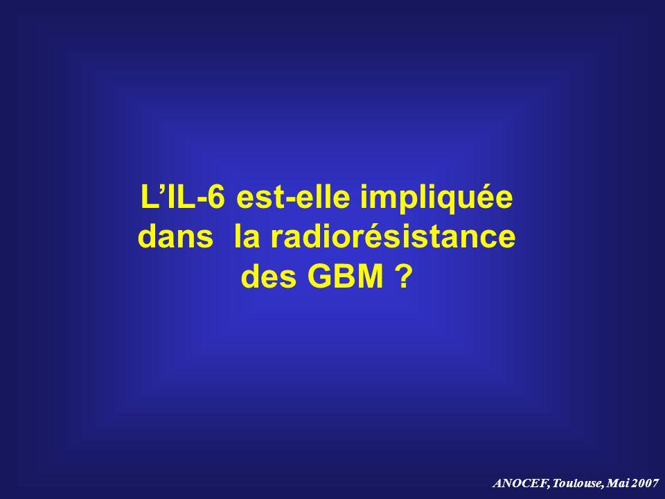 LIL-6 est-elle impliquée dans la radiorésistance des GBM ?