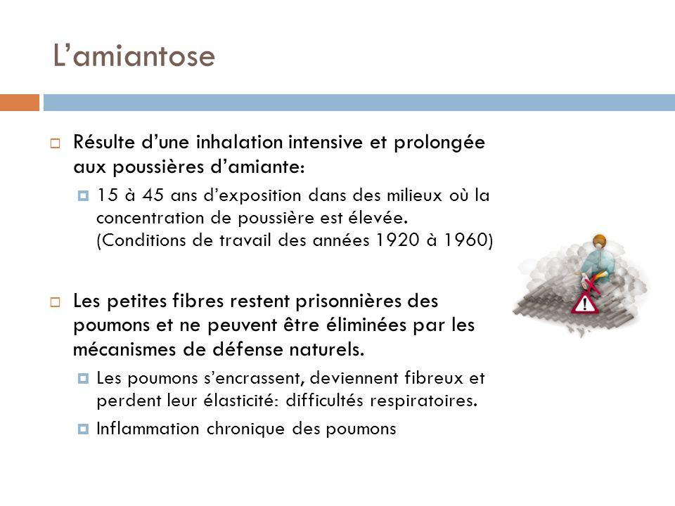 Lamiantose Résulte dune inhalation intensive et prolongée aux poussières damiante: 15 à 45 ans dexposition dans des milieux où la concentration de pou