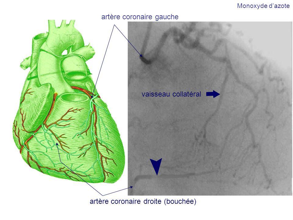 artère coronaire gauche artère coronaire droite (bouchée) vaisseau collatéral Monoxyde dazote