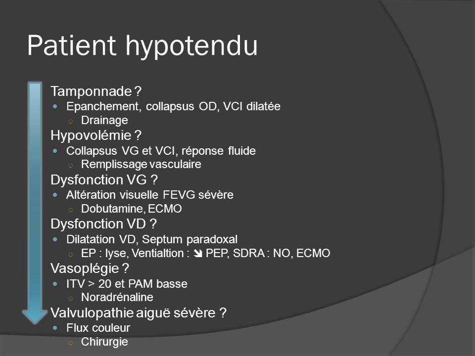 Patient hypotendu Tamponnade ? Epanchement, collapsus OD, VCI dilatée Drainage Hypovolémie ? Collapsus VG et VCI, réponse fluide Remplissage vasculair