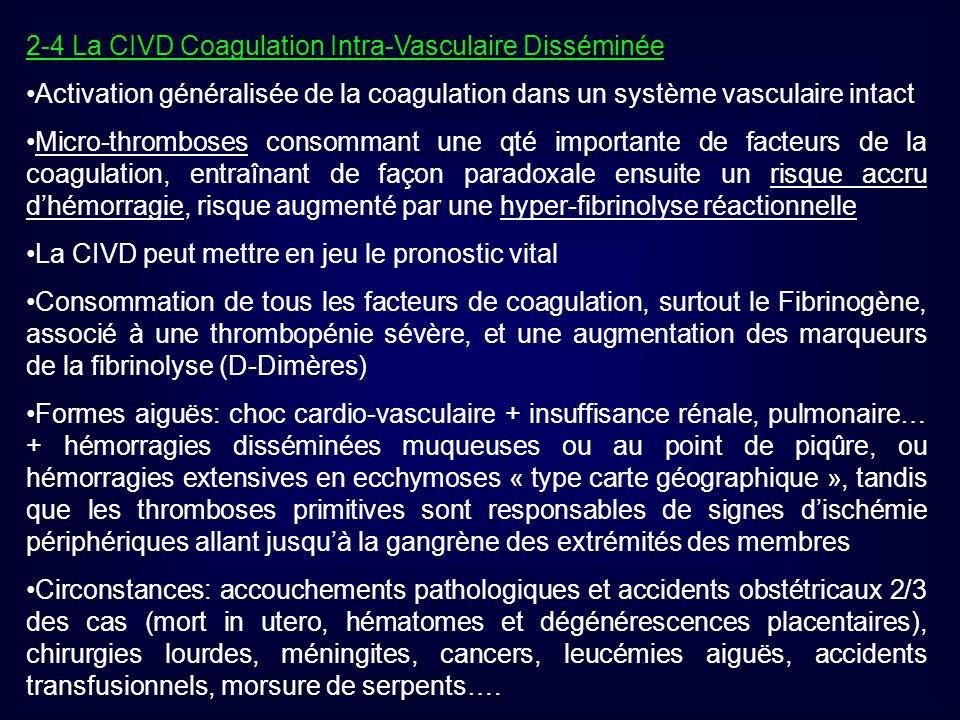 2-4 La CIVD Coagulation Intra-Vasculaire Disséminée Activation généralisée de la coagulation dans un système vasculaire intact Micro-thromboses consom