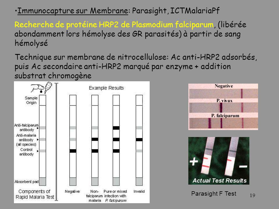 19 Immunocapture sur Membrane: Parasight, ICTMalariaPf Recherche de protéine HRP2 de Plasmodium falciparum, (libérée abondamment lors hémolyse des GR parasités) à partir de sang hémolysé Technique sur membrane de nitrocellulose: Ac anti-HRP2 adsorbés, puis Ac secondaire anti-HRP2 marqué par enzyme + addition substrat chromogène Parasight F Test