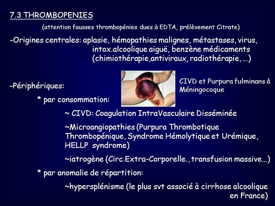 7.3 THROMBOPENIES (attention fausses thrombopénies dues à EDTA, prélèvement Citrate) -Origines centrales: aplasie, hémopathies malignes, métastases, v