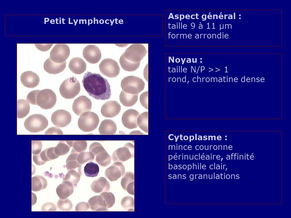 Aspect général : taille 9 à 11 µm forme arrondie Noyau : taille N/P >> 1 rond, chromatine dense Cytoplasme : mince couronne périnucléaire, affinité basophile clair, sans granulations Petit Lymphocyte