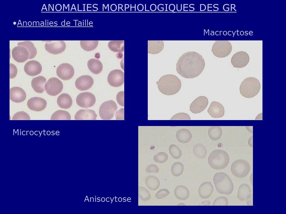 ANOMALIES MORPHOLOGIQUES DES GR Anomalies de Taille Microcytose Macrocytose Anisocytose