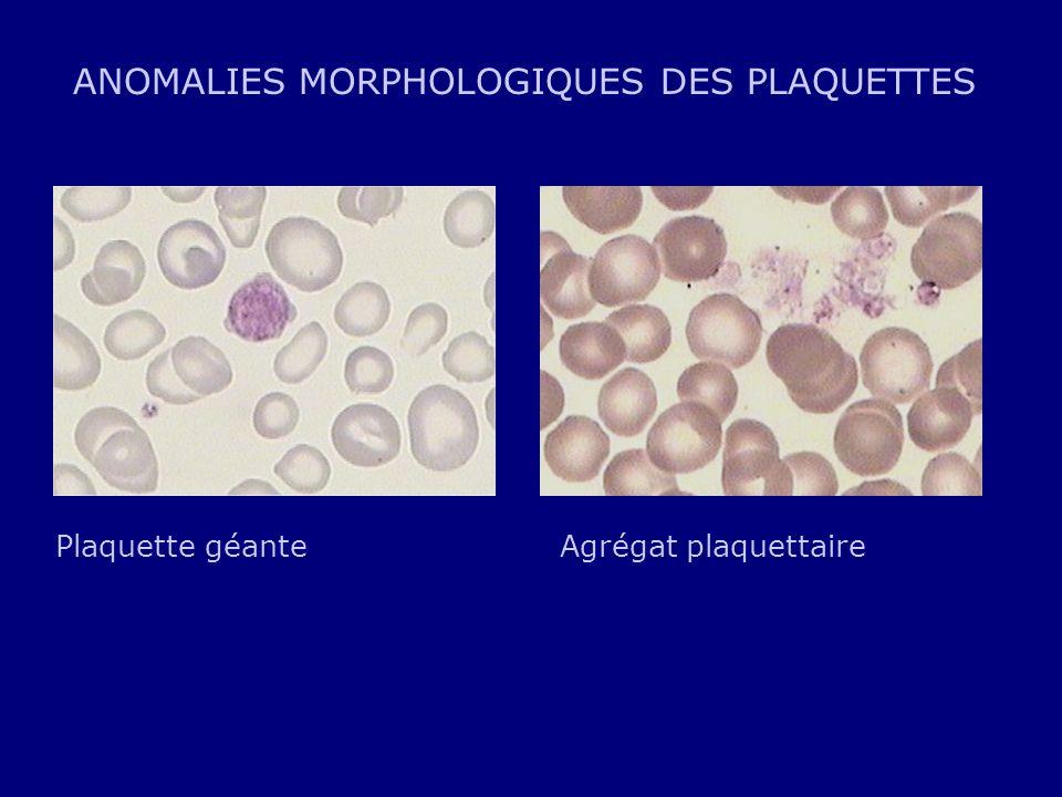 ANOMALIES MORPHOLOGIQUES DES PLAQUETTES Plaquette géanteAgrégat plaquettaire